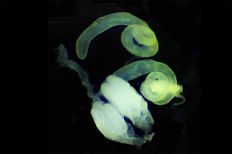 Jeremy Auerbach '17 submitted an image depicting a pair of spiral-shaped testes isolated from a single adult Drosophila melanogaster fly, as well as a pair of ovaries isolated from a single adult female of the same species. Drosophila melanogaster testes are unique in their radiant yellow color. Each ovary consists of several tubular egg-producing ovarioles, which are visible in the image, and a transparent oviduct connects the two ovaries. The striking glow of these reproductive tissues is entirely natural.
